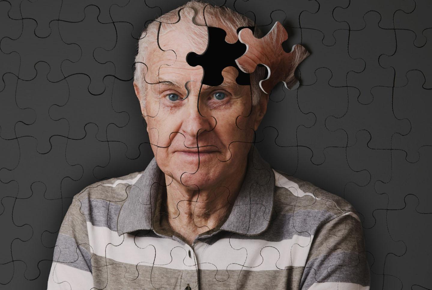 Пансионаты уход за больными альцгеймера пансионат в калуге для инвалидов