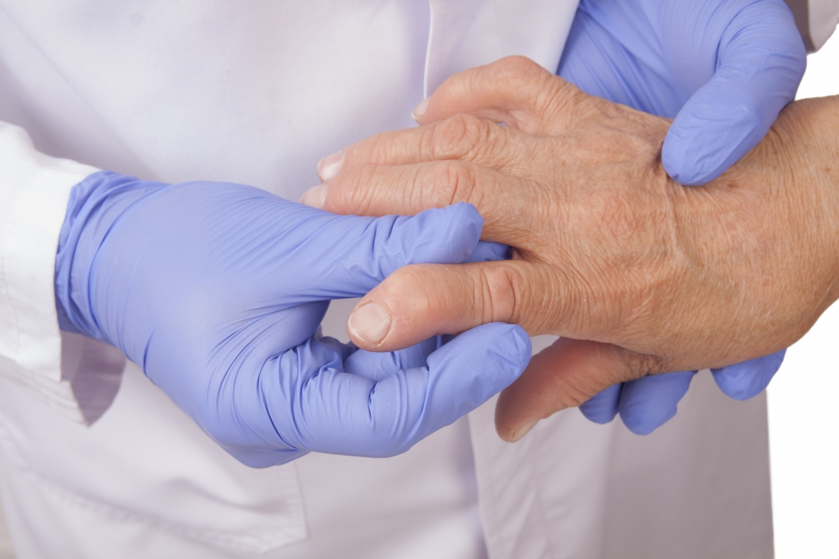 степень артрита