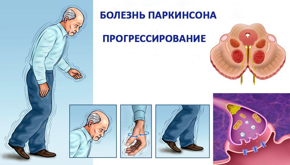 прогрессирование болезни Паркинсона