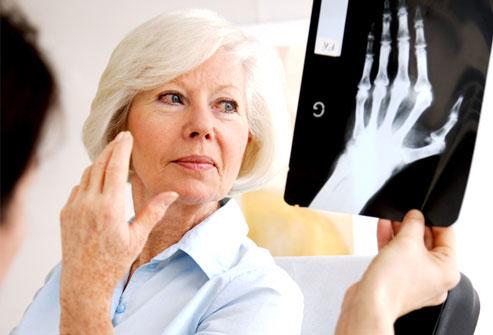 лечение артрита в Запорожье
