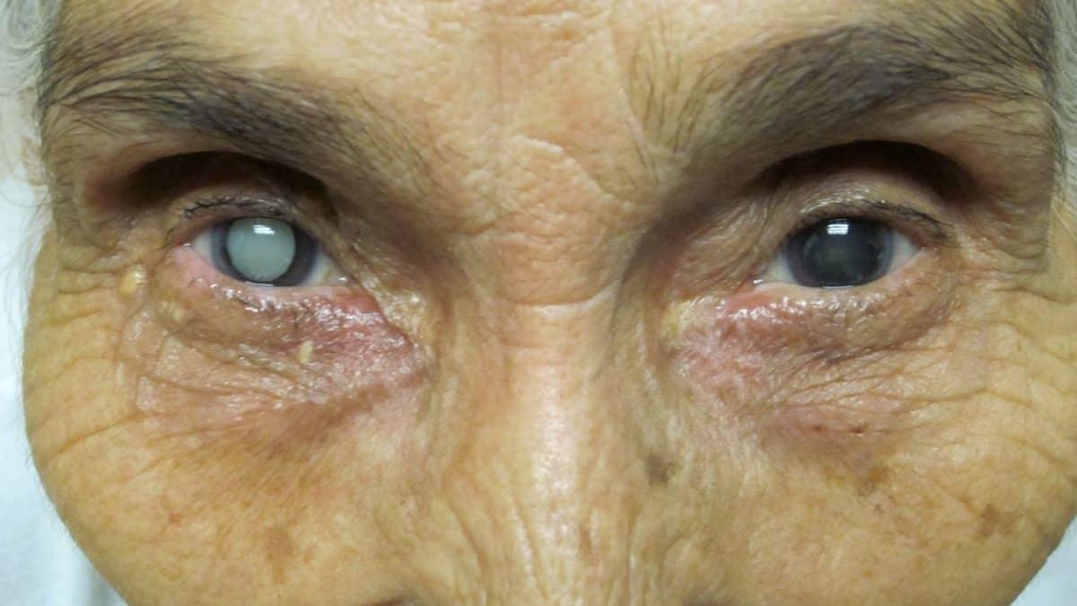 катаракта у пожилых
