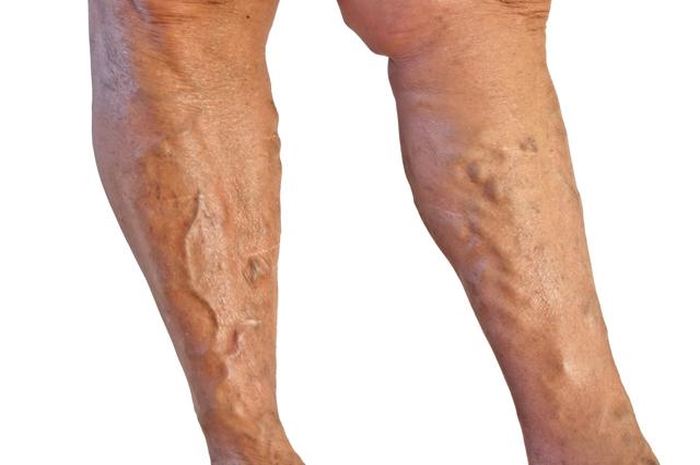 варикоз ног